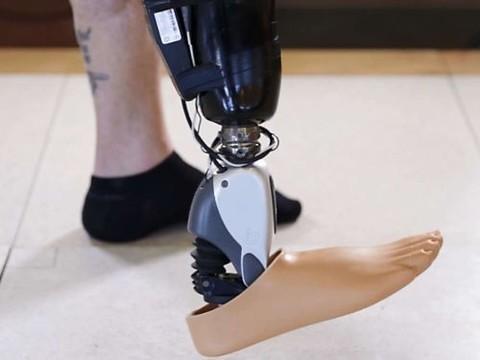 Исландская компания успешно протестировала «бионическую ногу»
