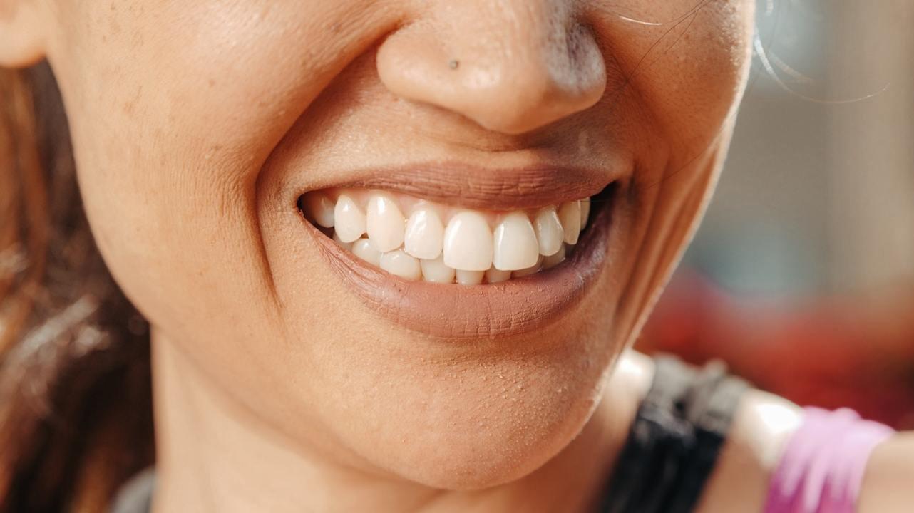 Отбеливание может повредить зубы