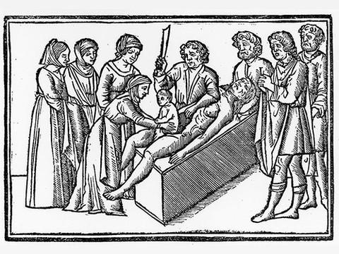 Первая успешная операция кесарева сечения состоялась в 1337 году