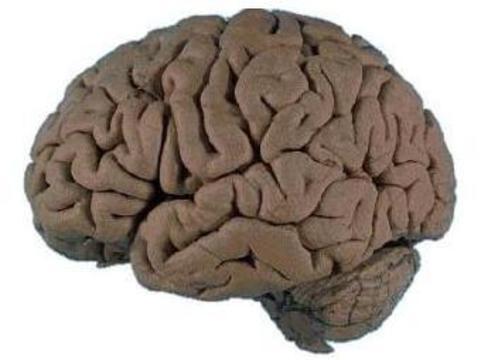 Сканирование  мозга обнаружило [возможную причину  бессердечности]