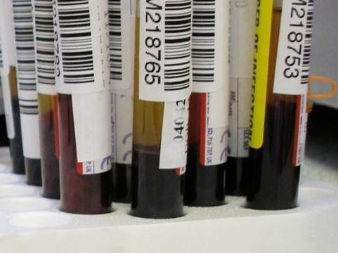 В крови отравившихся детей из Иркутска [обнаружены психотропные вещества]