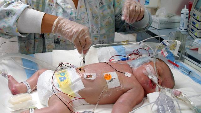 Врачи указали на сопутствующие болезни у большинства детей с тяжелым течением COVID-19