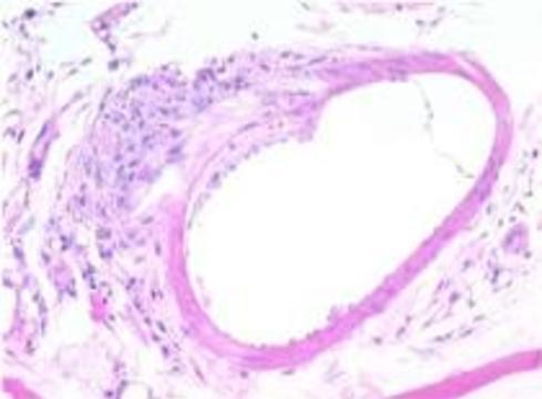 Раковые клетки останутся без питания