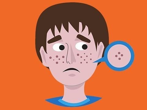 Ученые рассказали, какие продукты способствуют появлению угревой сыпи