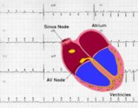 Найден ген мерцательной аритмии