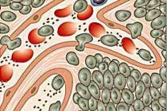 Предполагаемая причина рака простаты – новый вирус