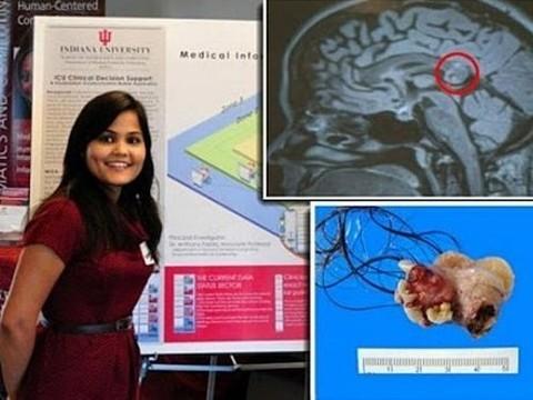 Врачи удалили «эмбриологического близнеца» из мозга девушки