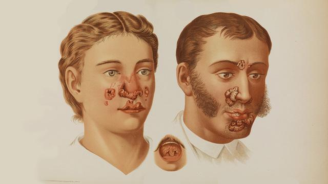 """""""Стыдная"""" болезнь: как обнаружить сифилис"""