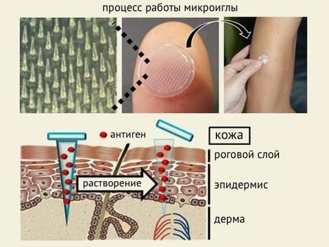 Вакцина от гриппа в форме пластыря заменит инъекции