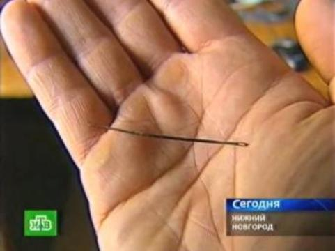 Нижегородские хирурги извлекли из сердца пациентки [5-сантиметровую швейную иглу]