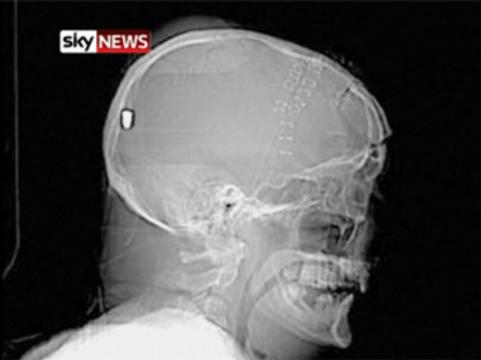 У британца с подозрением на инсульт [нашли в голове пулю]