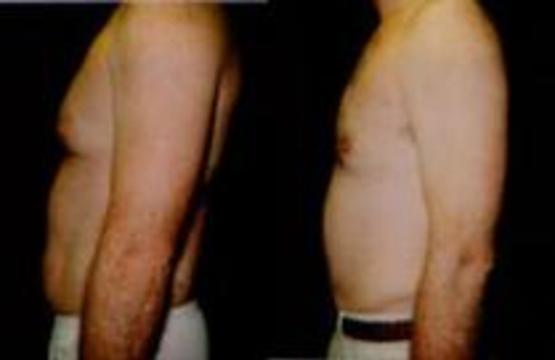Мексиканцам удалили жир ультразвуком