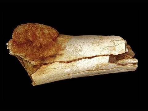 Обнаружена самая древняя злокачественная опухоль