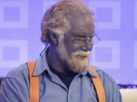«Человек с голубой кожей» [умер в возрасте 62 лет]