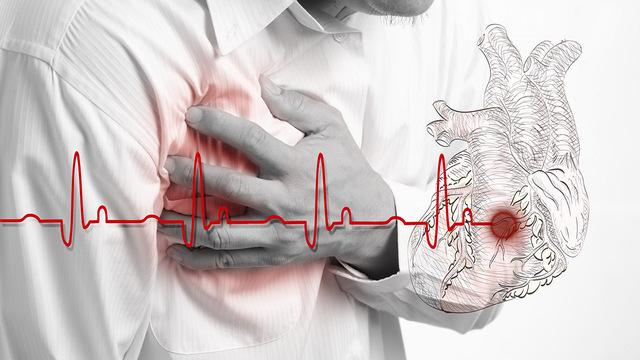 В Италии COVID-19 связали с ростом числа остановок сердца вне больниц