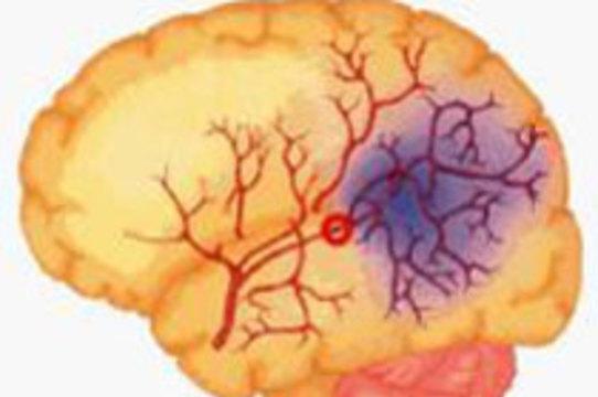 Выявлен механизм [самовосстановления мозга после инсульта]