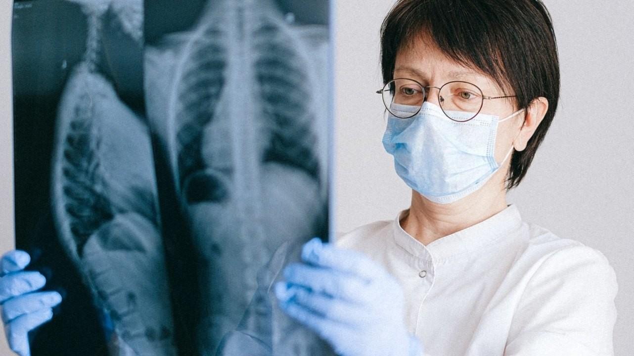 Почему у некурящих людей может развиться рак легкого? Новые данные