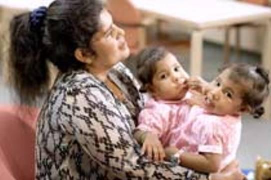 Сиамских близнецов из Коста-Рики [разделят в США]