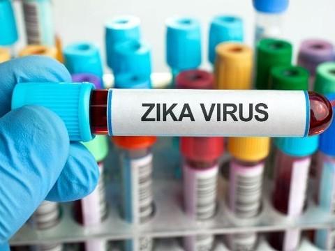 Российская пациентка с вирусом Зика чувствует себя хорошо