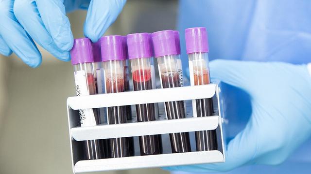 Три биомаркера могут предсказывать смерть от COVID-19 за 10 дней