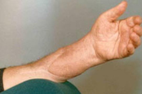 [Американец получил донорскую руку] вместо потерянной 32 года назад