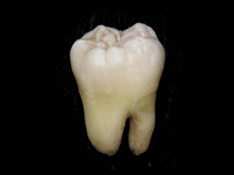Врачи обнаружили [зуб в стопе хорвата]