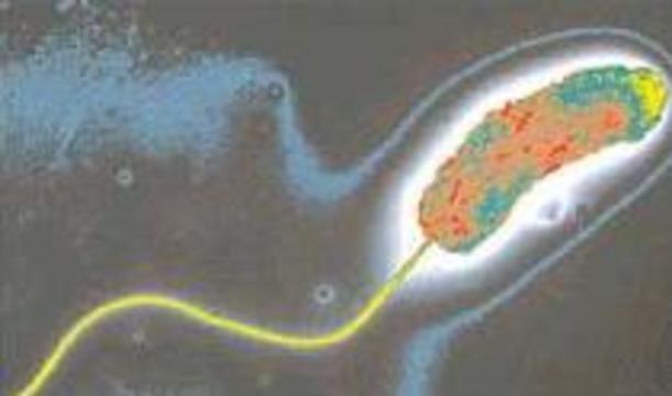 Возбудитель холеры становится устойчивым к антибиотикам