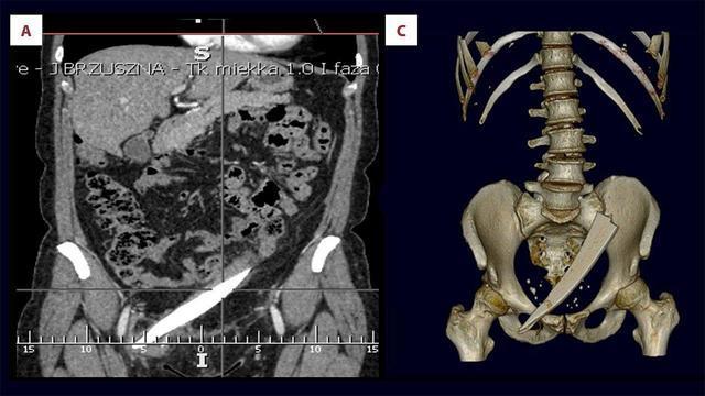 В Польше у женщины врачи нашли огромный кусок стекла в полости таза