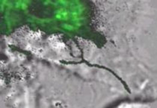 Исследователи впервые наблюдали взаимодействие иммунных клеток и бактерий