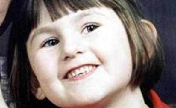 Девочка умерла после удаления молочного зуба