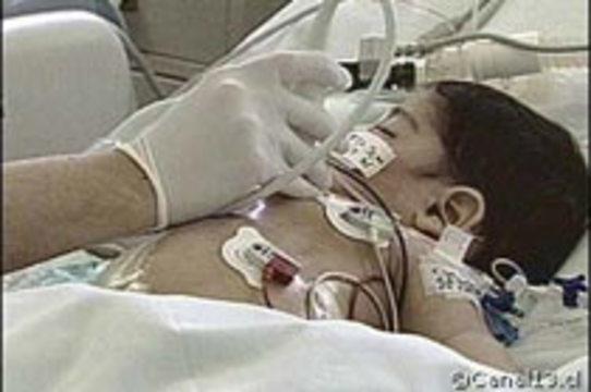 Чилийские хирурги провели 16-часовую операцию по [разделению сиамских близнецов]