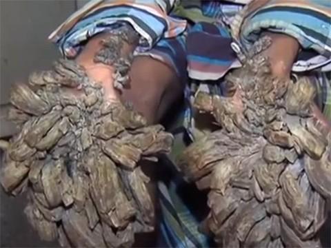 «Человек-дерево» перенес первую операцию