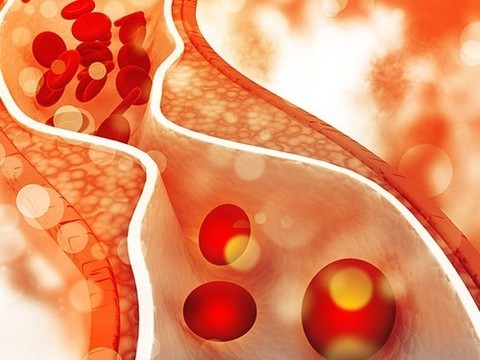 Как холестерин способствует метастазированию рака груди и других видов рака