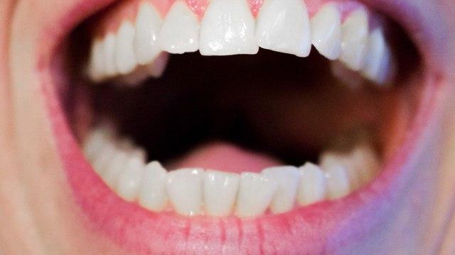 Выучить назубок: 5 продуктов для укрепления зубов и десен