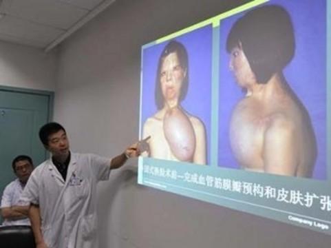 Новое лицо китаянке вырастили [на ее груди]