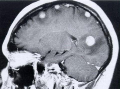 Ученые объяснили механизм возникновения [метастазов рака в мозге]