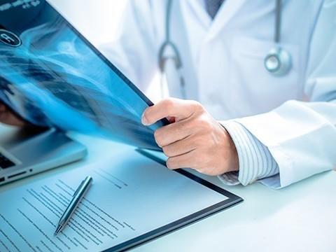 Найдена новая комбинация лекарств для терапии рака легкого