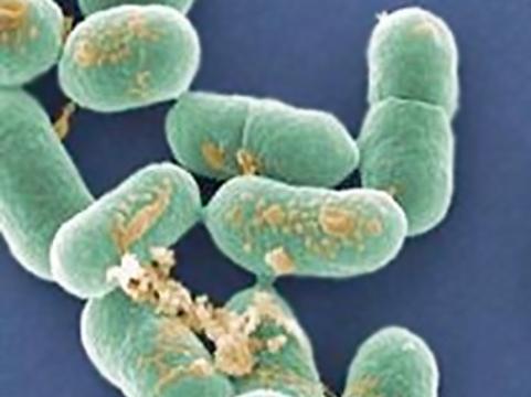 Вспышка листериоза в США побила [рекорд по числу жертв]