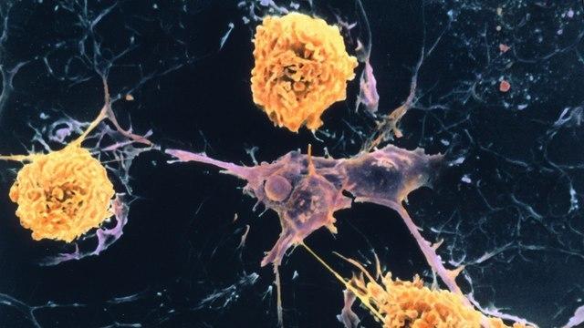 10 важных фактов о рассеянном склерозе