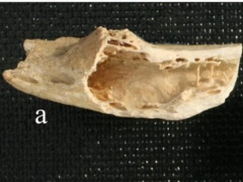 У неандертальца из хорватской пещеры нашли [современную опухоль кости]