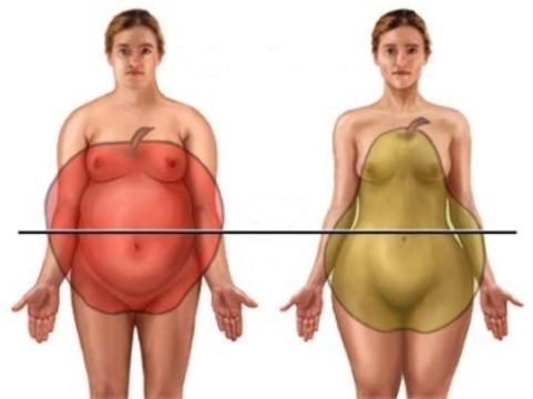 Ученые опровергли [связь типов ожирения с риском инфаркта]