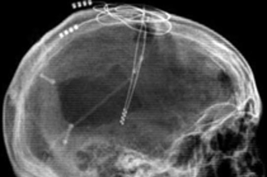 """Электростимуляция мозга """"пробудила"""" американца [через 6 лет после травмы]"""