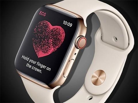 Часы Apple Watch поставили мужчине диагноз опасной аритмии сразу после включения