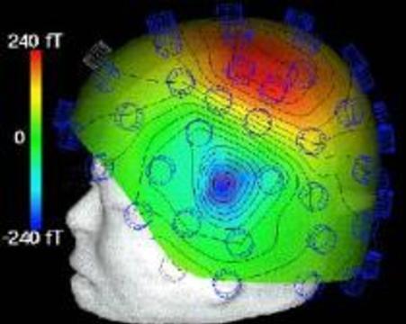 Найден участок мозга, принимающий решения