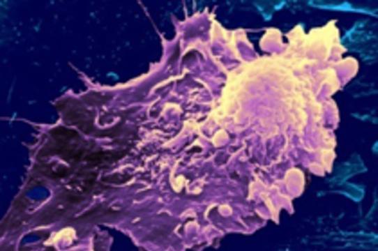 Иммунным клеткам вернут [способность атаковать опухоли]
