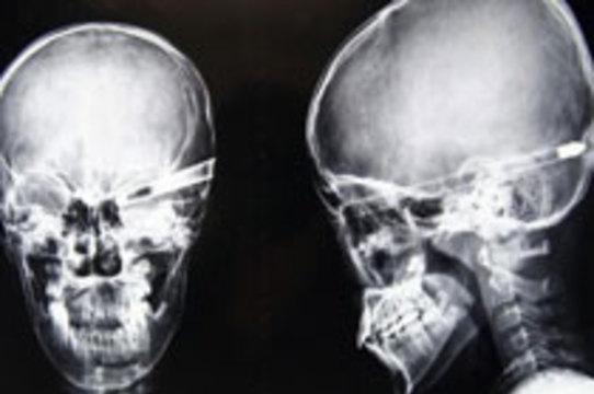 Китайские хирурги [достали стрелу из головы школьника]