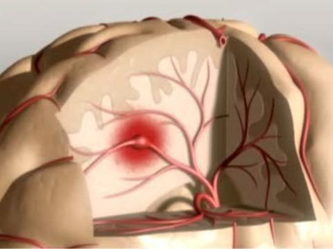Стволовые клетки помогли пациентам с инсультом [начать ходить]