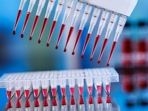 Большая клиническая апробация показала эффективность нового скрининга на синдром Дауна