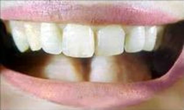Спрей с бактериями-мутантами защищает зубы от кариеса