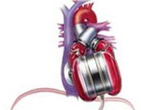 Сделана первая успешная имплантация механического сердца